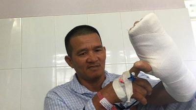 'Hiệp sĩ' Bình Dương bị thanh niên ngáo đá chém đứt gân tay