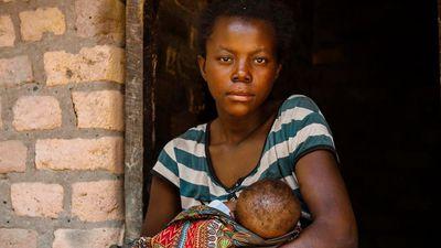 Thiếu nữ châu Phi sinh con khi 12 tuổi, làm nô lệ tình dục cho chồng