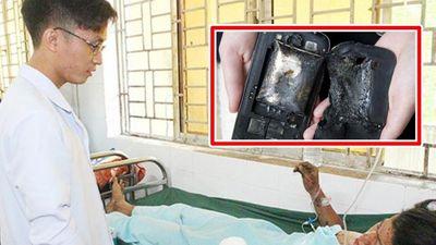 Điện thoại nổ khi đang sạc, thanh niên 22 tuổi ở Đồng Nai mất bàn tay