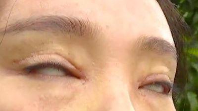 Cô gái không thể nhắm mắt sau khi phẫu thuật cắt mí