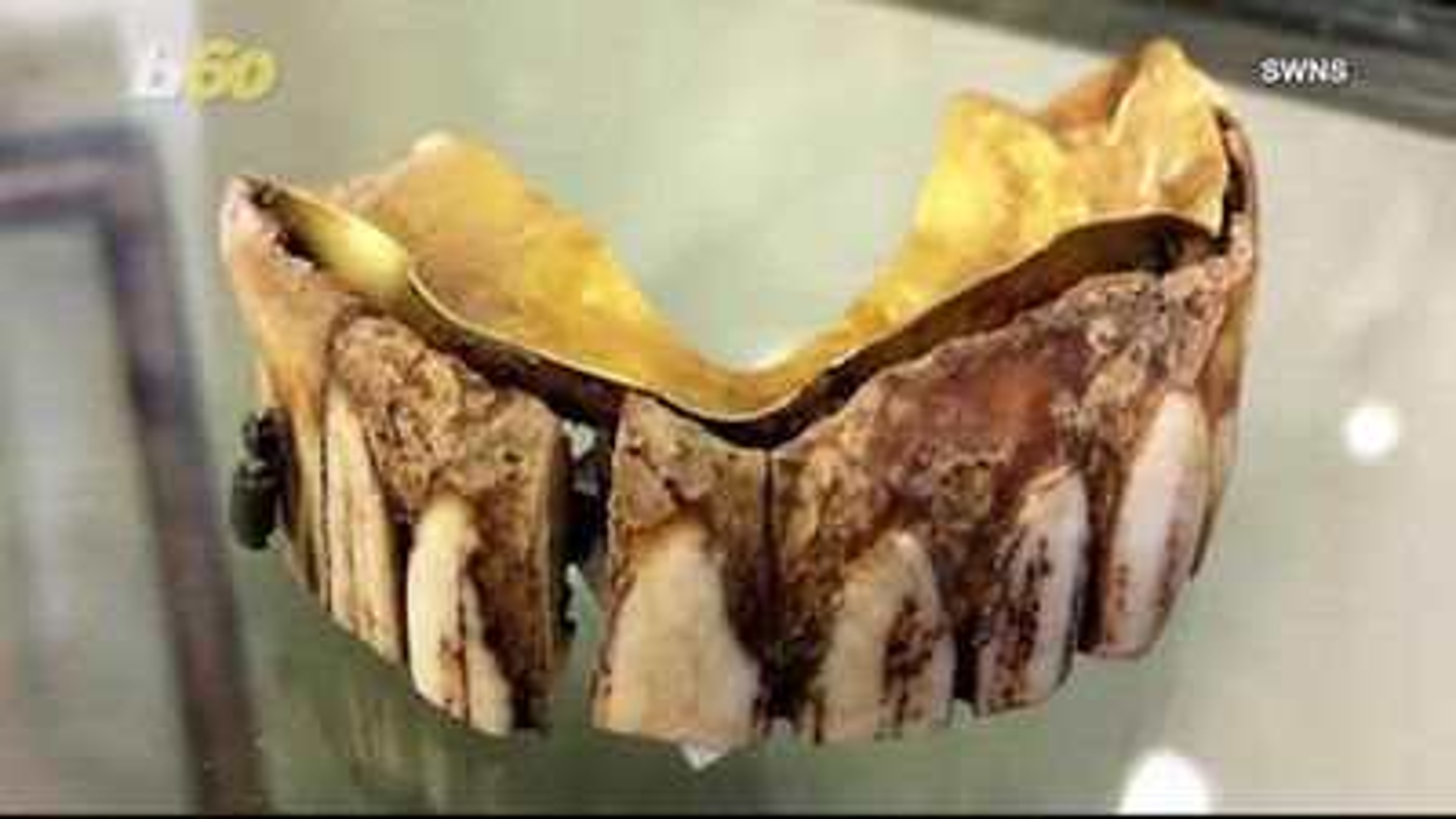 Cận cảnh bộ răng giả 200 năm tuổi làm từ vàng và sừng hà mã