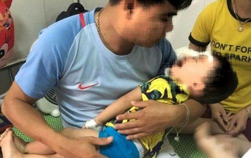 Bị chó Becgie nhà nuôi tấn công bất ngờ, bé trai 2 tuổi tổn thương vùng mặt nghiêm trọng