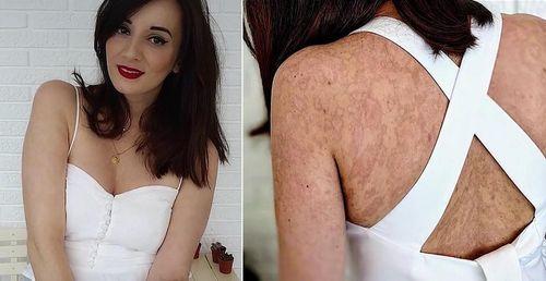 Uống vài viên kháng sinh, cô gái xinh đẹp bị bỏng 90% da