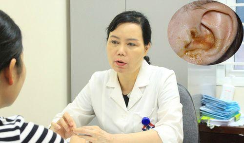 Trẻ bị điếc đặc, liệt mặt do sai lầm của cha mẹ khi chữa viêm tai giữa