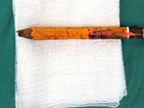 Bé trai 9 tuổi bị bút chì đâm thấu mông vì trò nghịch của bạn