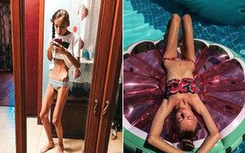 Nghe lời công ty người mẫu khuyên giảm cân, 2 nữ sinh song sinh hóa thành xác sống chờ chết ở bệnh viện