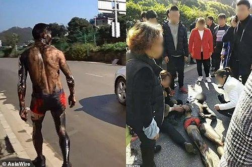 Chú rể Trung Quốc bị hủy lễ cưới, nhập viện khẩn cấp vì đám bạn chơi khăm tàn bạo