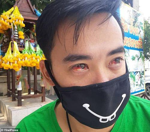 Ô nhiễm không khí cực độc, người dân Thái Lan ho và chảy cả máu mắt
