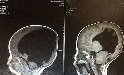 Kỳ lạ sức sống mãnh liệt của cậu bé 6 tuổi, sinh ra không có não