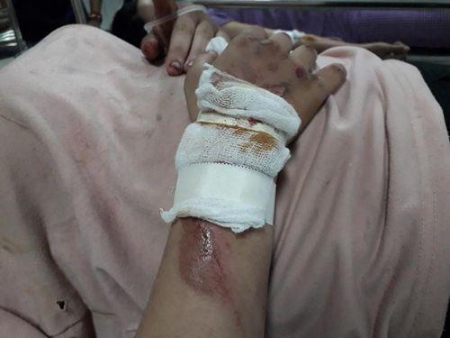 Nữ sinh hoảng loạn kể lại phút bị 2 tên cướp kéo lê gần 20 mét trên đường