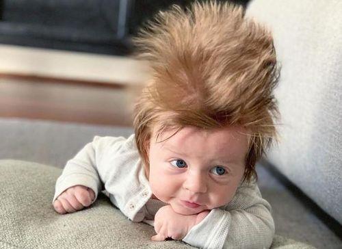 Bé 4 tháng tuổi có mái tóc 'tươi tốt lạ kỳ' khiến nhiều người chú ý