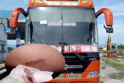 Đánh phụ xe trọng thương, cướp hàng ô tô khách trên Quốc lộ 1A đoạn qua Nghệ An
