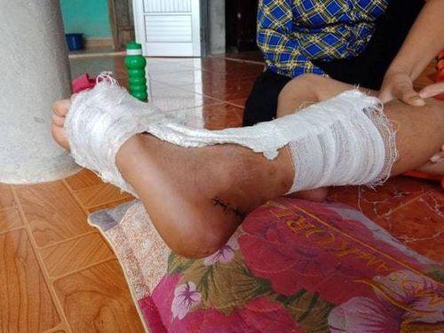 Học sinh bị đứt gân chân trong giờ học: Thầy hiệu trưởng nói gì?