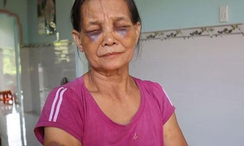 Con dâu đánh mẹ chồng tím mặt ở Bình Phước: Phạt 2 triệu đồng
