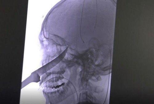Thiếu niên 15 tuổi bị dao dài 25cm đâm vào đầu vẫn thoát chết trong gang tấc