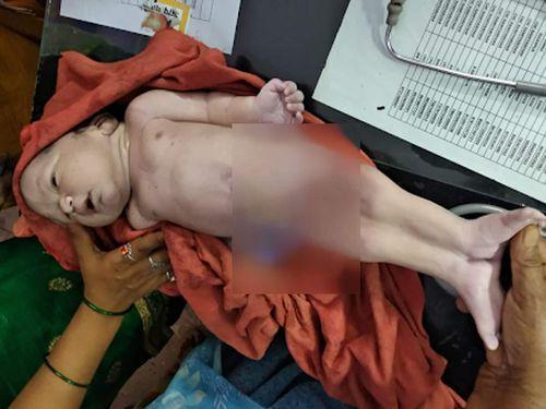 Bé trai 'người cá' chào đời ở Ấn Độ