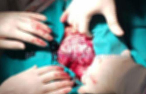 Tự ý truyền đạm, vô tình 'nuôi' khối u thận nặng 2kg