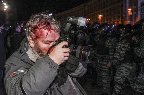 Những lần 'đổ máu' của các phóng viên quốc tế