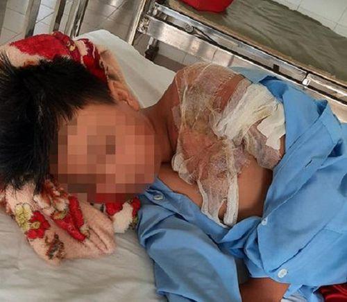 Điều tra vụ cha tạt nước sôi khiến con trai 11 tuổi bị bỏng nặng ở Long An