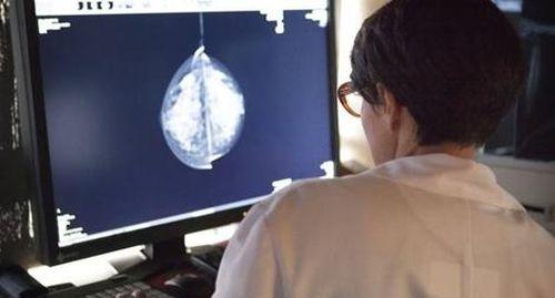 Chẩn đoán ung thư vú bằng trí tuệ nhân tạo
