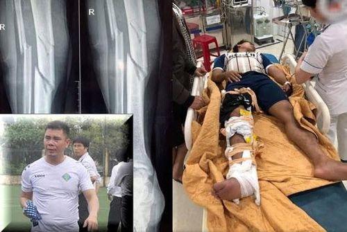 Clip cựu tuyển thủ Việt Nam đạp đối phương gãy đầu gối 3 khúc ở giải bóng phủi