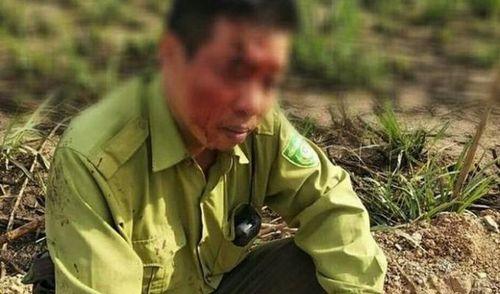 Đắk Lắk: Khởi tố đối tượng ném khúc tre vỡ đầu cán bộ kiểm lâm