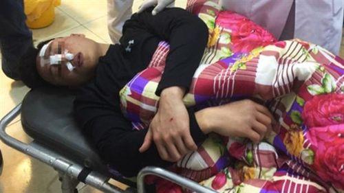 Bác sĩ trẻ bị đánh dã man: Gãy mũi, phải phẫu thuật