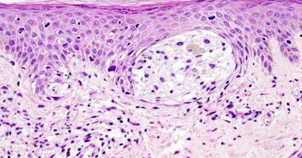 Phát hiện cách 'bật' cơ chế tự hủy ung thư ngay trong cơ thể