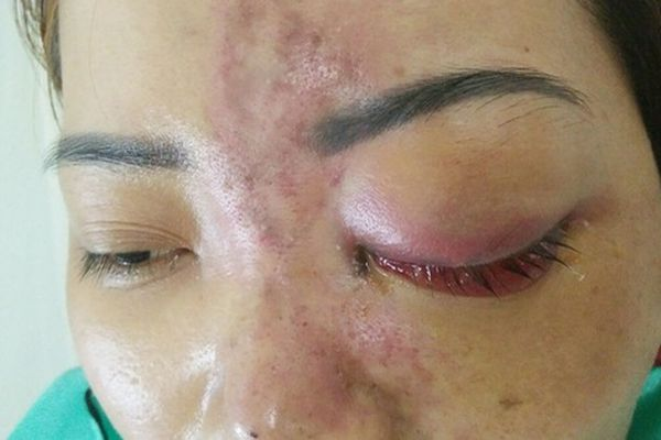 Phạt 120 triệu cơ sở spa không phép tiêm mù mắt khách hàng