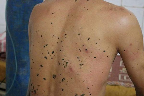Ong vò vẽ tấn công, 11 người ở Nghệ An thương vong