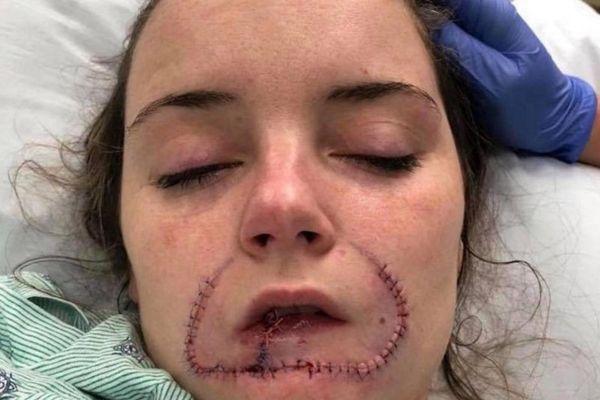 Gã trai Mỹ cắn đứt môi bạn gái để ghi dấu tình yêu