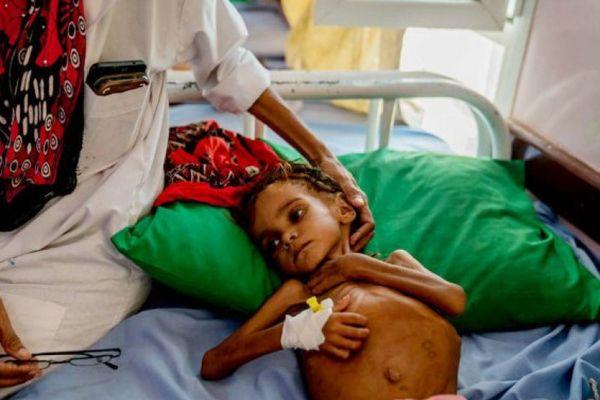 Bé gái gây chấn động thế giới về nạn đói ở Yemen đã qua đời