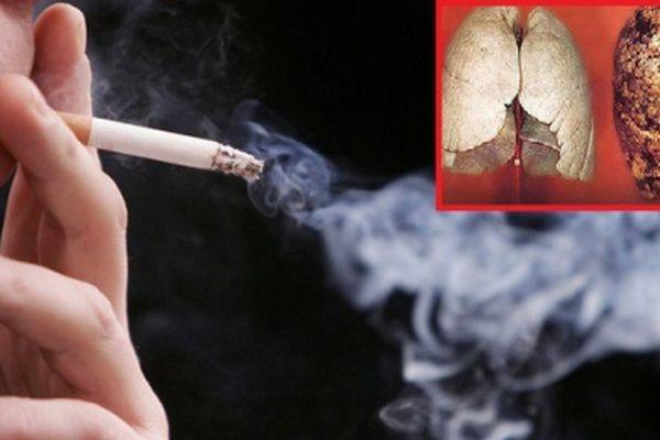 Chuyên gia cảnh báo nguy cơ mắc ung thư phổi do tiếp xúc với khói thuốc lá thụ động
