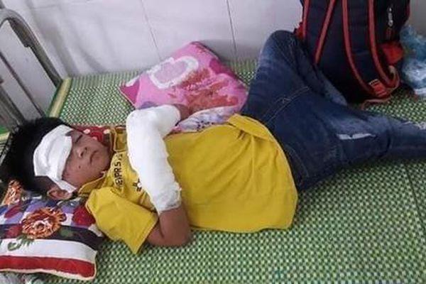Thêm một cháu bé bị nát hai bàn tay do điện thoại nổ