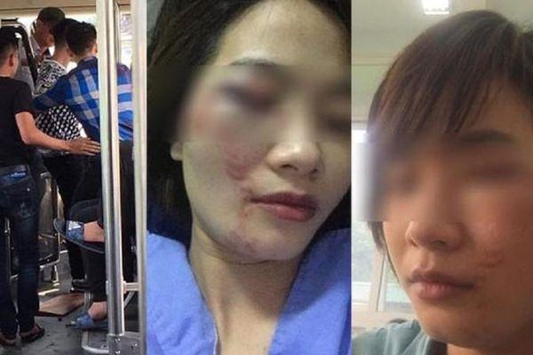 Truy nã 2 thanh niên đánh bầm dập nữ nhân viên xe buýt