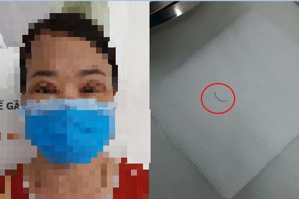 Người phụ nữ suýt mù vì bác sĩ cắt mí để quên kim khâu suốt 2 năm