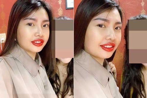 Phượng 'Thị Nở' gây thất vọng với đôi môi 'kém duyên' sau khi đi làm đẹp