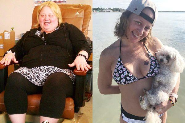 Người phụ nữ giảm 74 kg nhờ cắt dạ dày