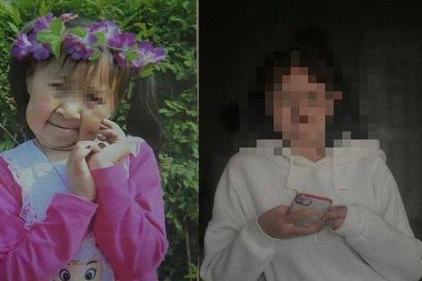 Mắc căn bệnh lạ, cô bé 6 tuổi có ngoại hình như bà lão 60, nhưng khuôn mặt sau khi phẫu thuật mới đáng kinh ngạc