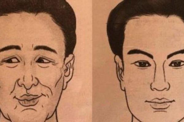 3 điểm trên khuôn mặt đàn ông báo hiệu cả đời nghèo khổ