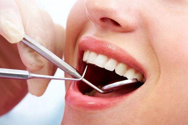 Lấy cao răng có ảnh hưởng đến sức khỏe không? Nên lấy cao răng mấy lần trong năm?