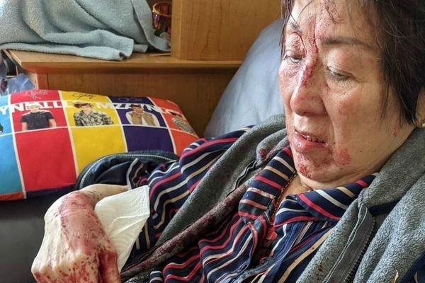 Người phụ nữ Canada gốc Việt bị tấn công tại nhà riêng