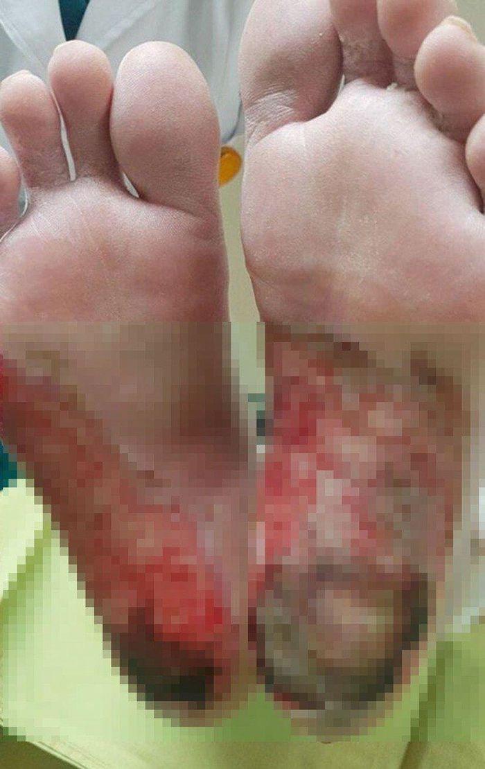 Bàn chân bị bỏng nặng nề, gót chân hoại tử sau khi sử dụng đá muối Himalaya