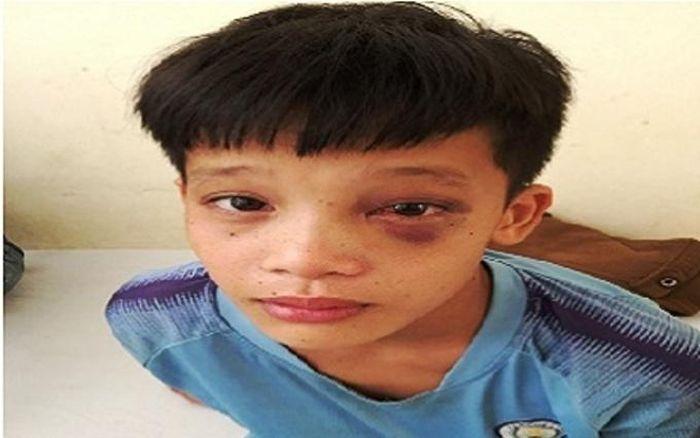 Phẫu thuật, lấy dị vật ở hốc mắt bệnh nhi tại Thanh Hóa