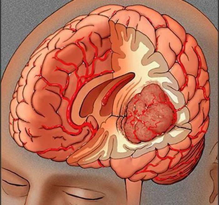 Dấu hiệu nhận biết bệnh u não đang khiến nhạc sĩ Quốc Bảo khổ sở