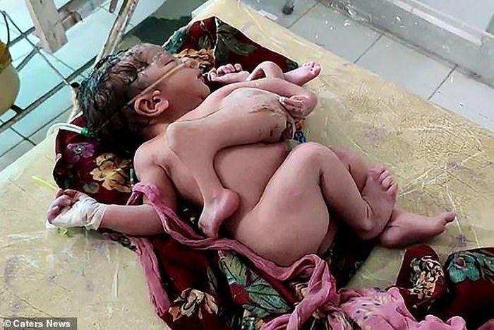 Bé gái sinh ra có 4 chân và 3 tay ở Ấn Độ