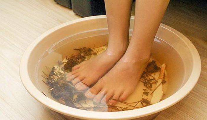 Cách trị 'nước ăn chân' mùa mưa?